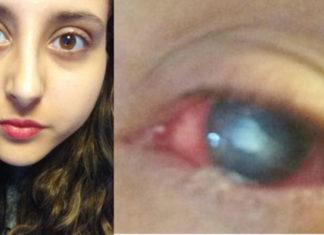 akibat memakai lensa kontak