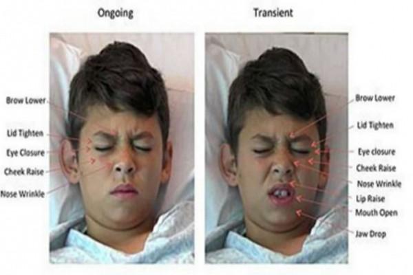 Peneliti Kembangkan Software untuk Baca Ekspresi Wajah Anak Sakit