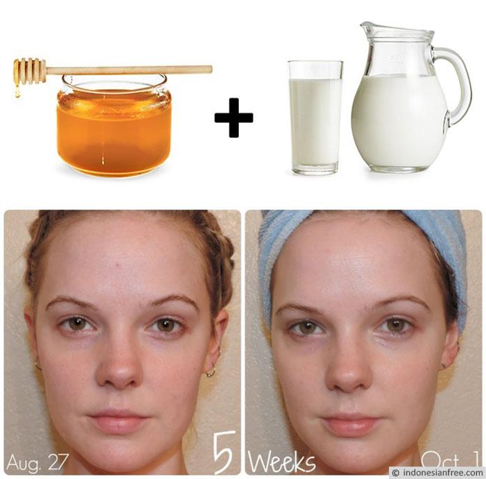manfaat madu untuk kulit wajah berminyak