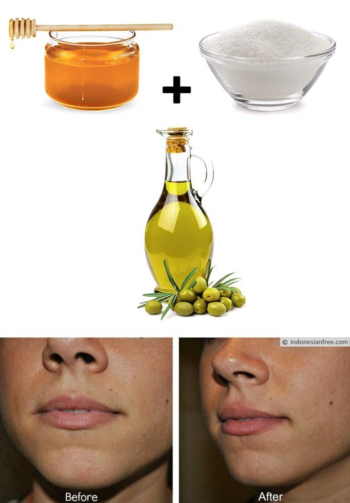 khasiat madu untuk wajah bopeng