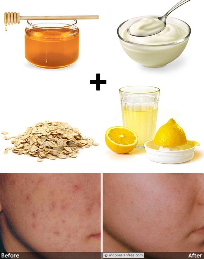 kegunaan madu untuk diet