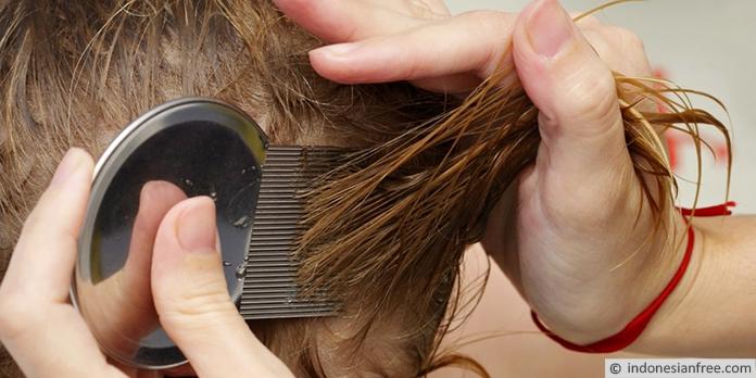 cara menghilangkan kutu rambut dan telurnya